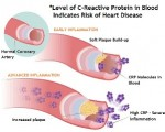cardiovascular-diseases-and-crp-test