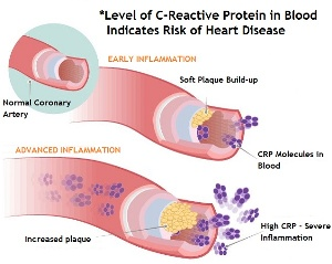 C-Reactive Protein Level and Cardiovascular Disease