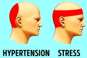 Tension Headaches Can Be Persistent, Take Good Care