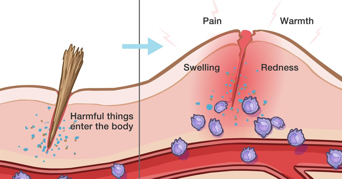 Seek Medical Attention If Inflammation Persists For Long