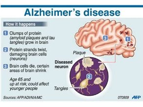 The Increasing Risk of Alzheimer's Disease