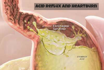 Heartburn - Distressing And Damaging